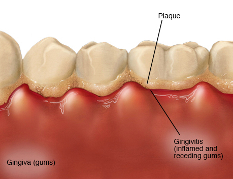 The effects of plaque built-up leading to Gingivitis